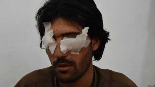 Abdul Baqi, 22, thought his family would help him get married. Instead, his father and four brothers accused him of violating Islamic values and removed his eyes to punish him. VOA photo